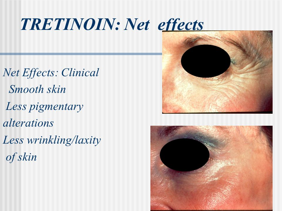 TRETINOIN: Net effects