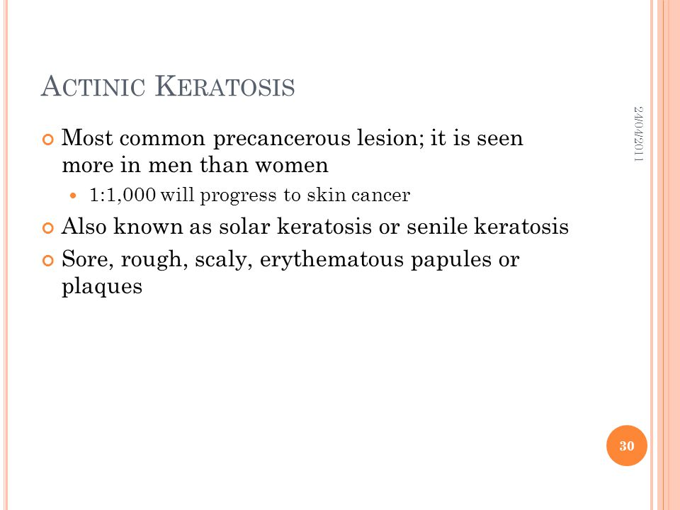 Actinic Keratosis 24/04/2011. Most common precancerous lesion; it is seen more in men than women.