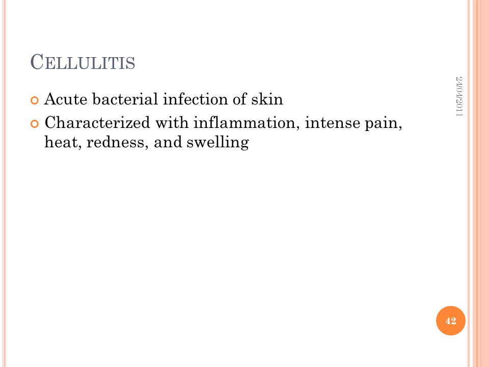 Cellulitis Acute bacterial infection of skin