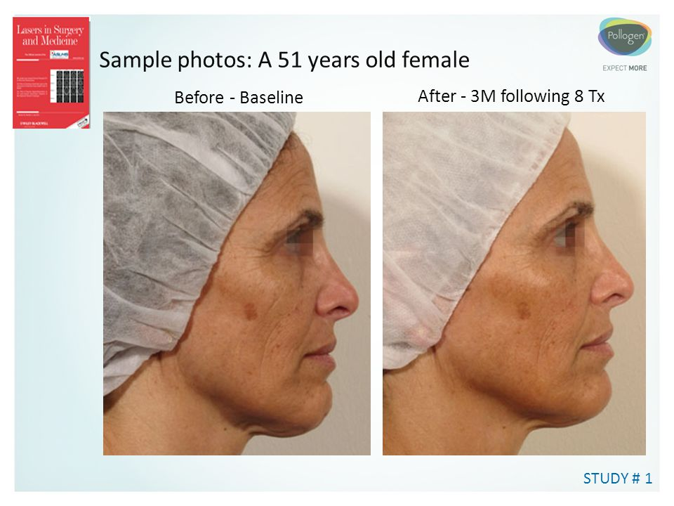 Sample photos: A 51 years old female