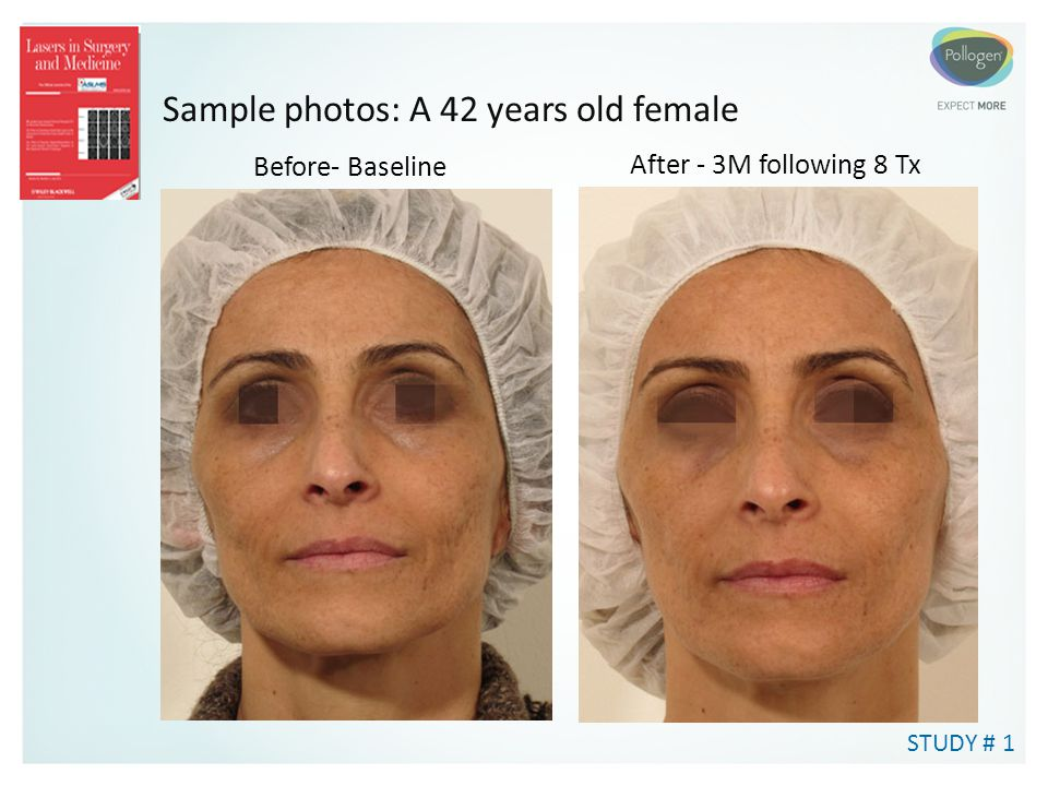 Sample photos: A 42 years old female