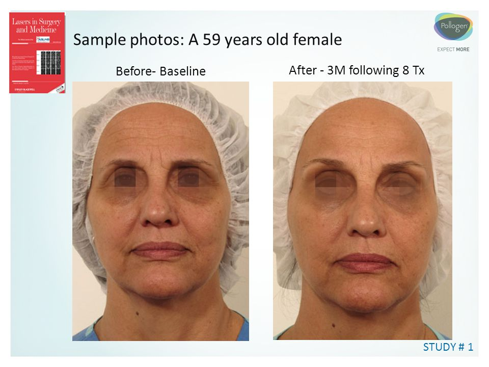 Sample photos: A 59 years old female
