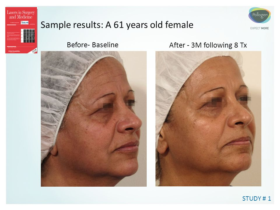 Sample results: A 61 years old female