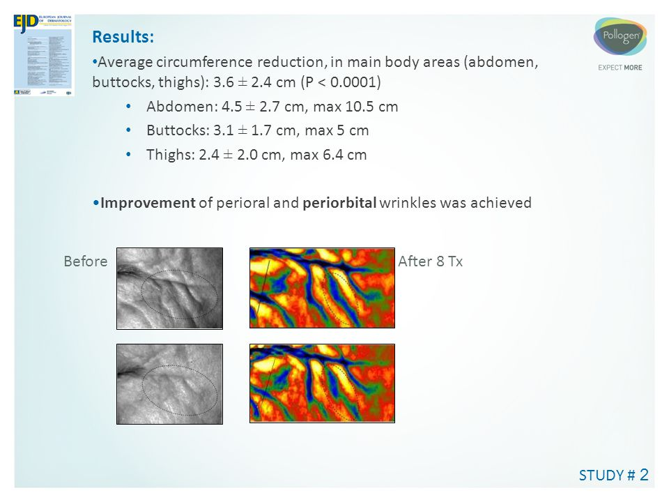 Results: Average circumference reduction, in main body areas (abdomen, buttocks, thighs): 3.6 ± 2.4 cm (P < 0.0001)