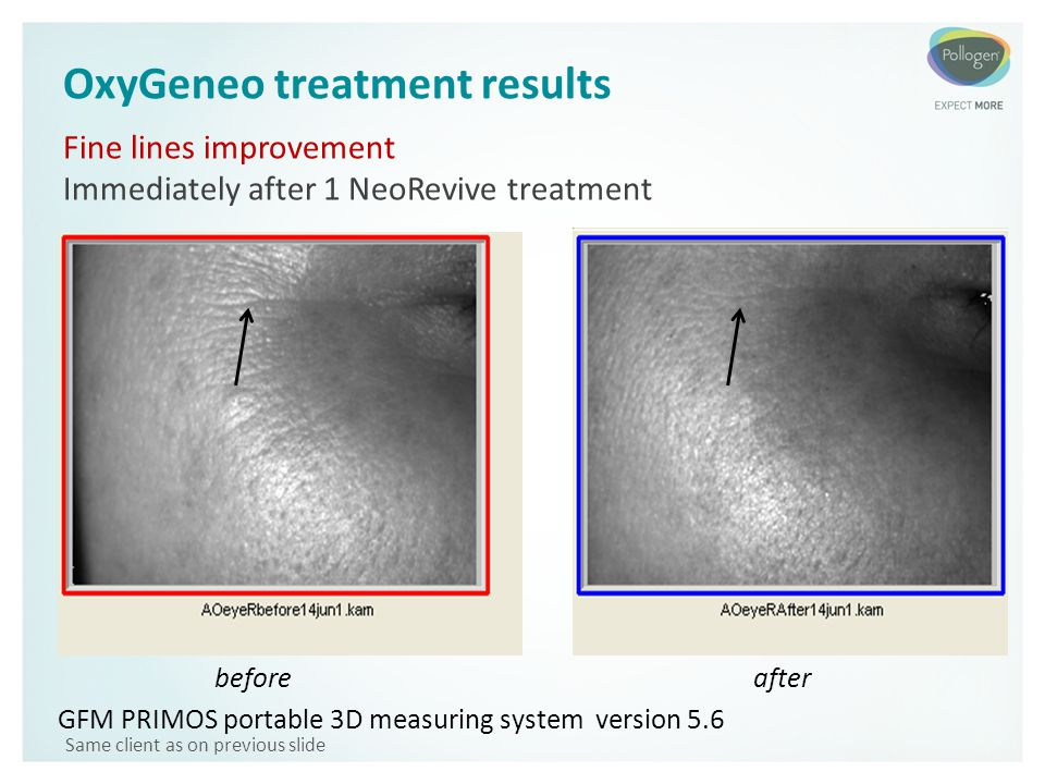 OxyGeneo treatment results