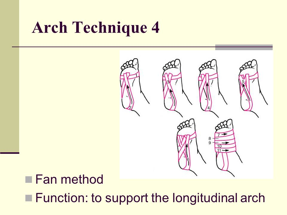 Arch Technique 4 Fan method Function: to support the longitudinal arch