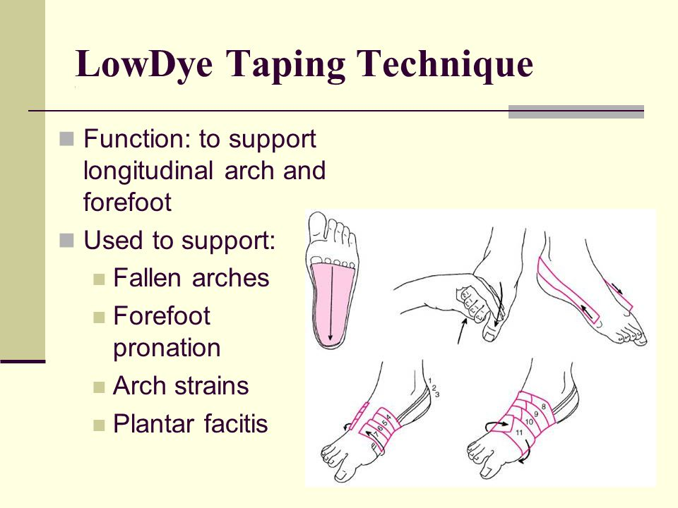 LowDye Taping Technique (