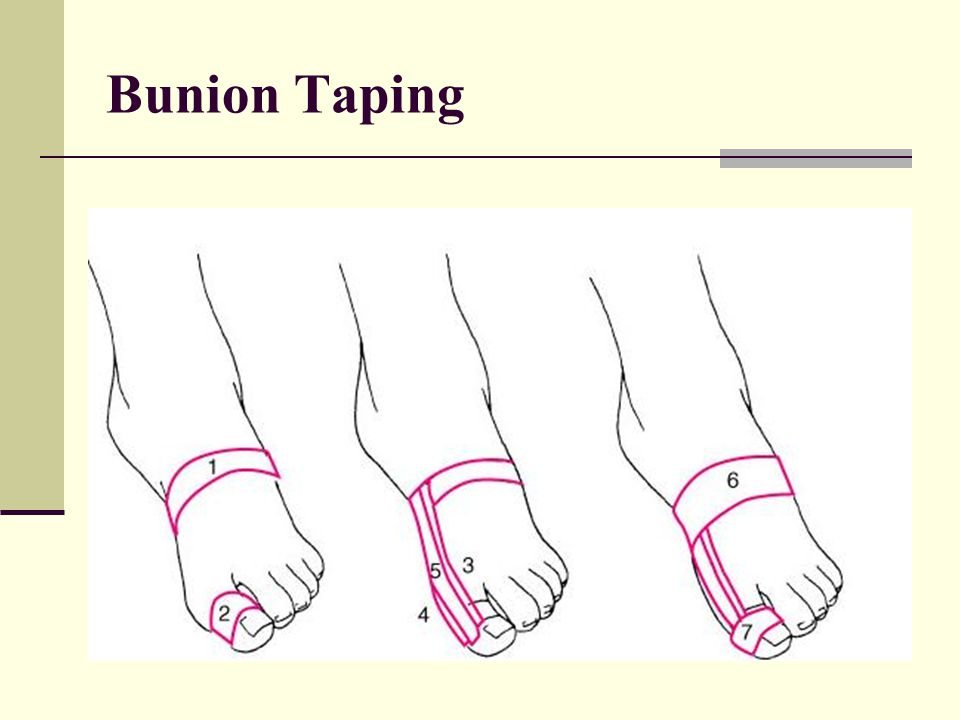 Bunion Taping