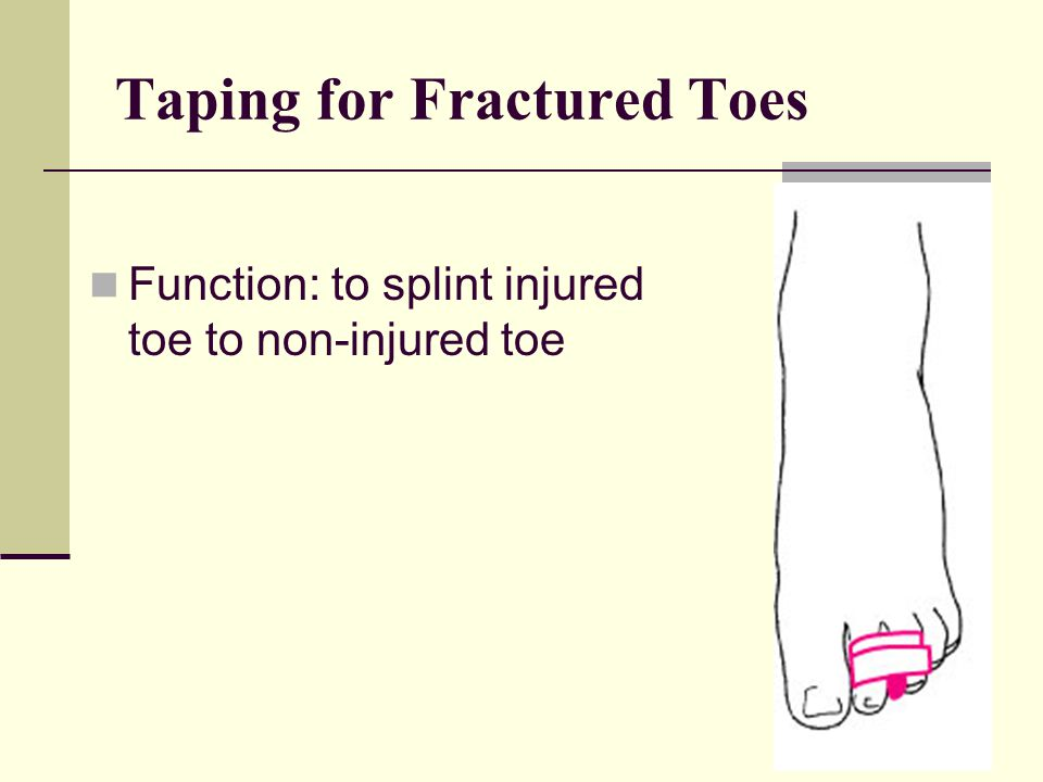 Taping for Fractured Toes