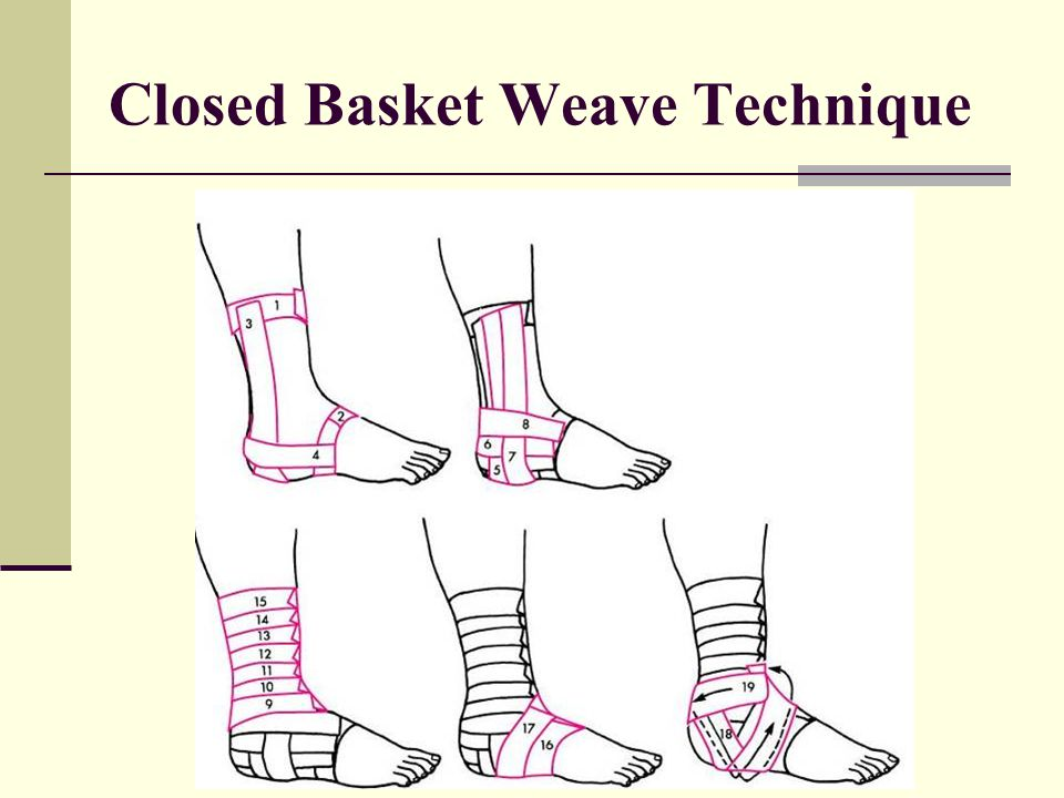 Closed Basket Weave Technique