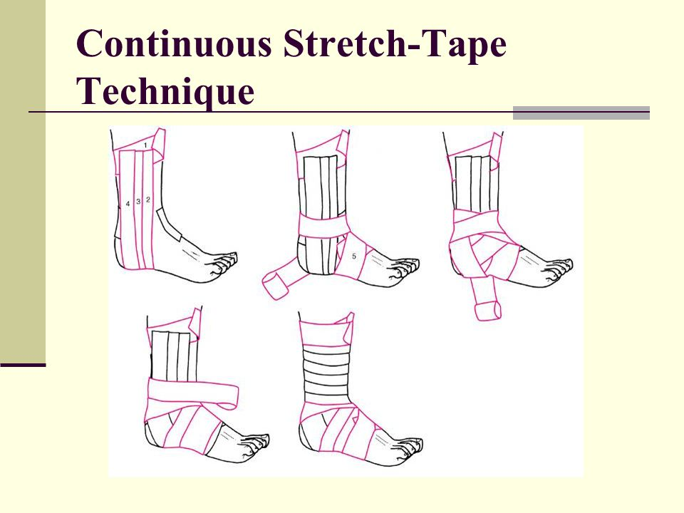 Continuous Stretch-Tape Technique