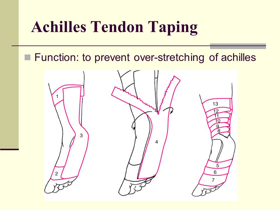 Achilles Tendon Taping