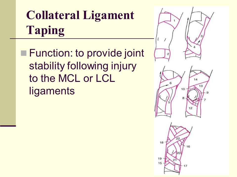 Collateral Ligament Taping
