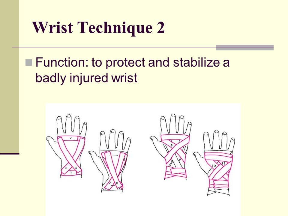 Wrist Technique 2 Function: to protect and stabilize a badly injured wrist