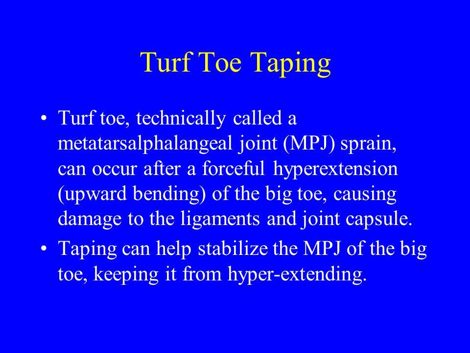 Turf Toe Taping