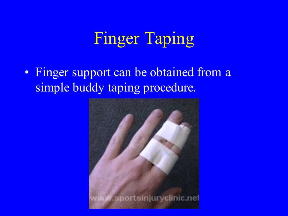 Finger Taping Finger support can be obtained from a simple buddy taping procedure.