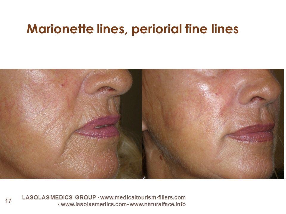 Marionette lines, periorial fine lines