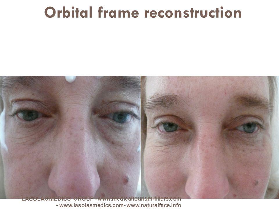 Orbital frame reconstruction