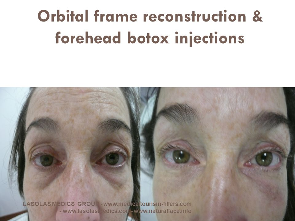 Orbital frame reconstruction & forehead botox injections