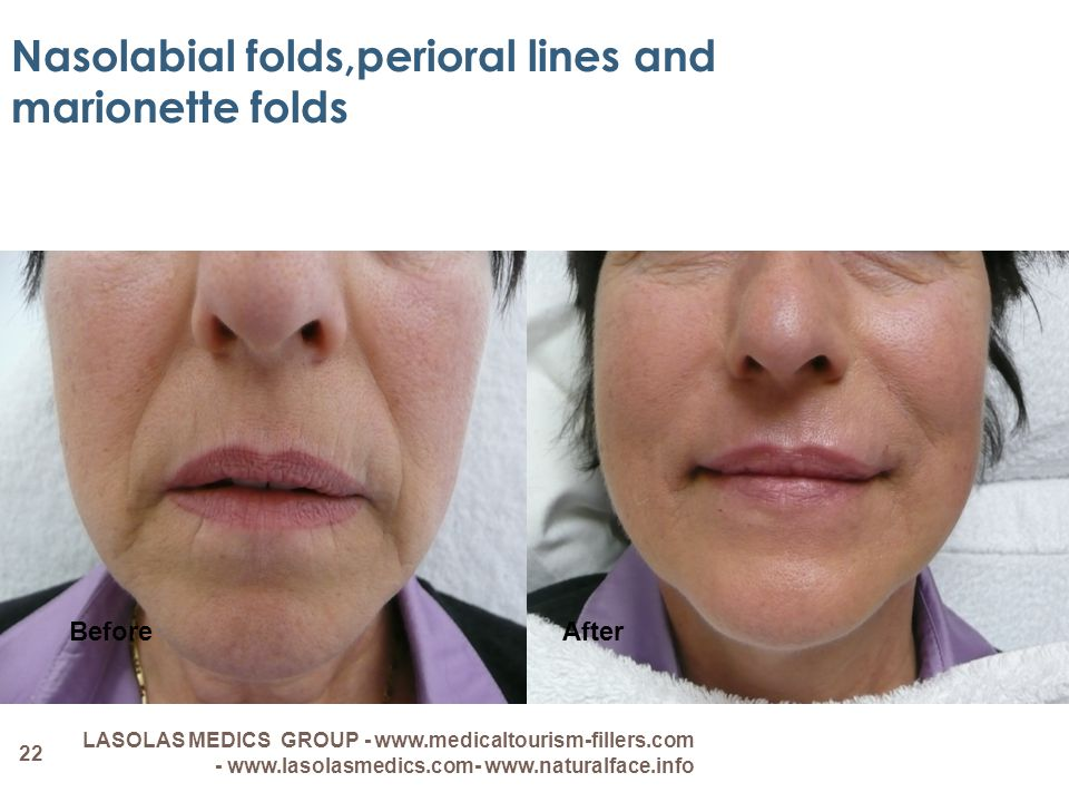 Nasolabial folds,perioral lines and marionette folds