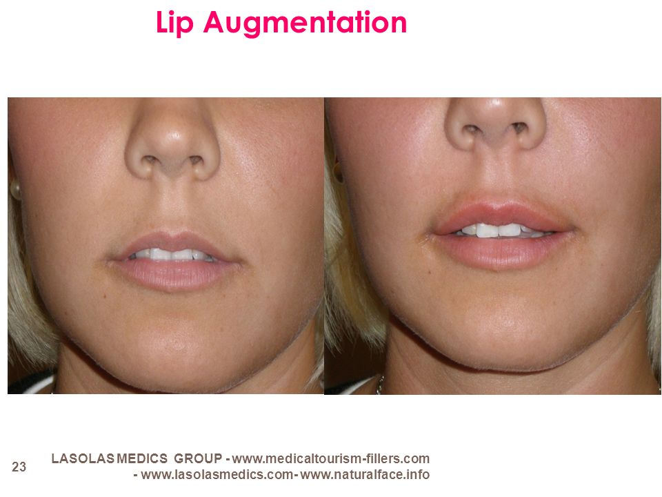 Lip Augmentation LASOLAS MEDICS GROUP - www.medicaltourism-fillers.com - www.lasolasmedics.com- www.naturalface.info.