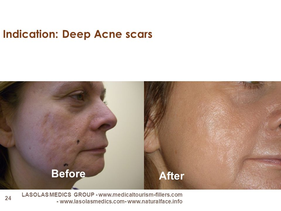 Indication: Deep Acne scars