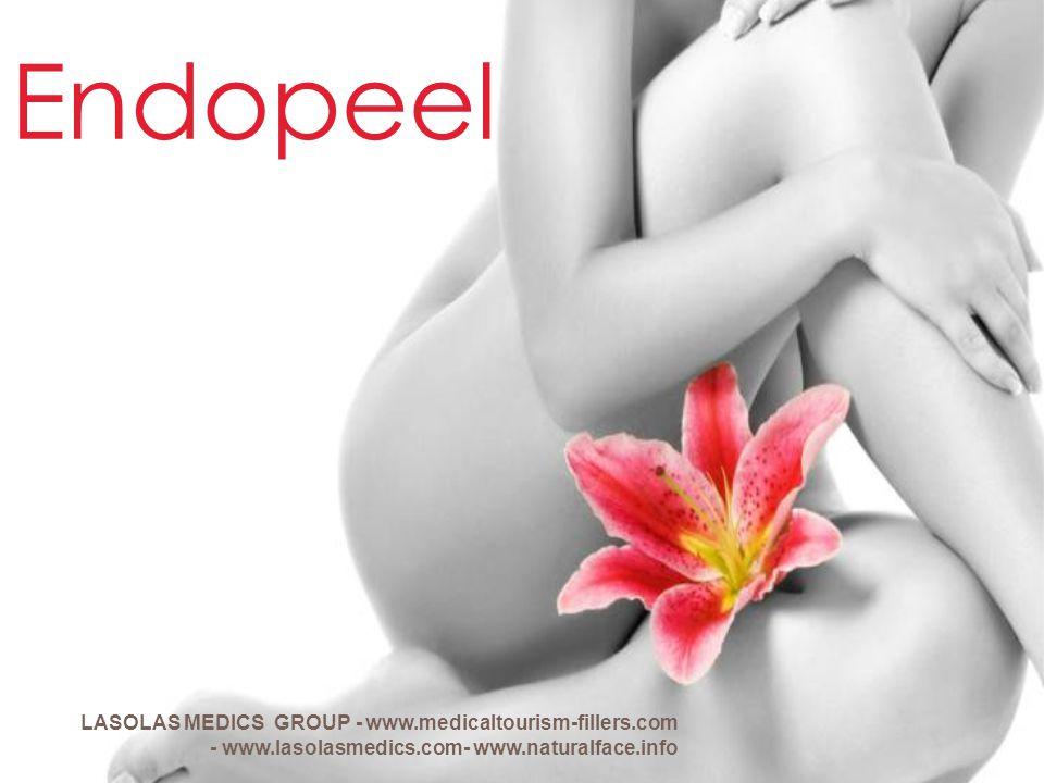 Endopeel LASOLAS MEDICS GROUP - www.medicaltourism-fillers.com - www.lasolasmedics.com- www.naturalface.info.