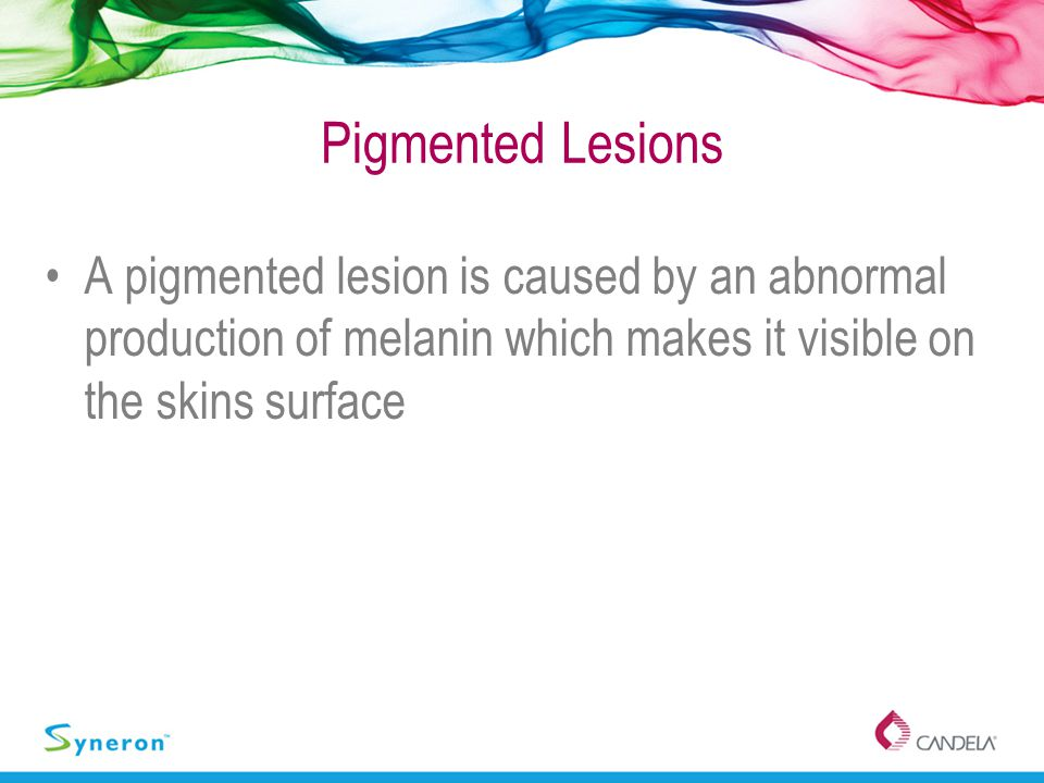 Pigmented Lesions A pigmented lesion is caused by an abnormal production of melanin which makes it visible on the skins surface.