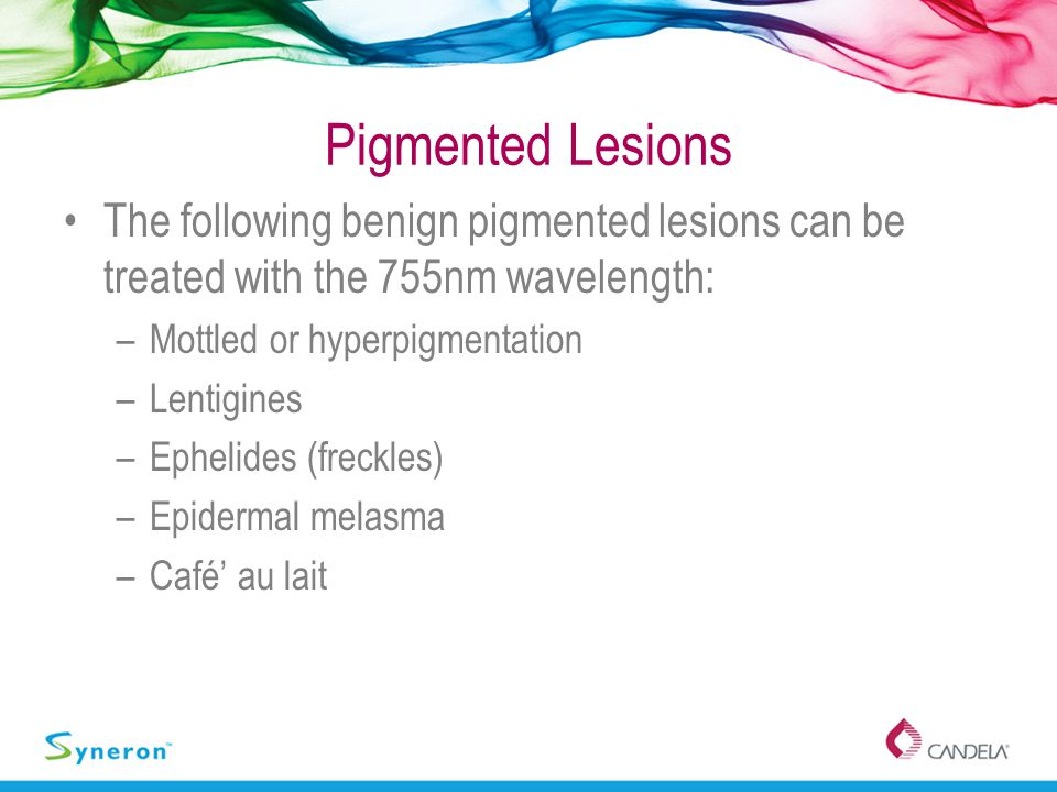 Pigmented Lesions The following benign pigmented lesions can be treated with the 755nm wavelength: Mottled or hyperpigmentation.