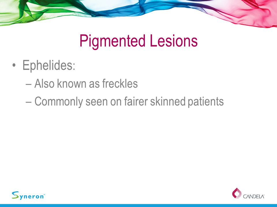 Pigmented Lesions Ephelides: Also known as freckles