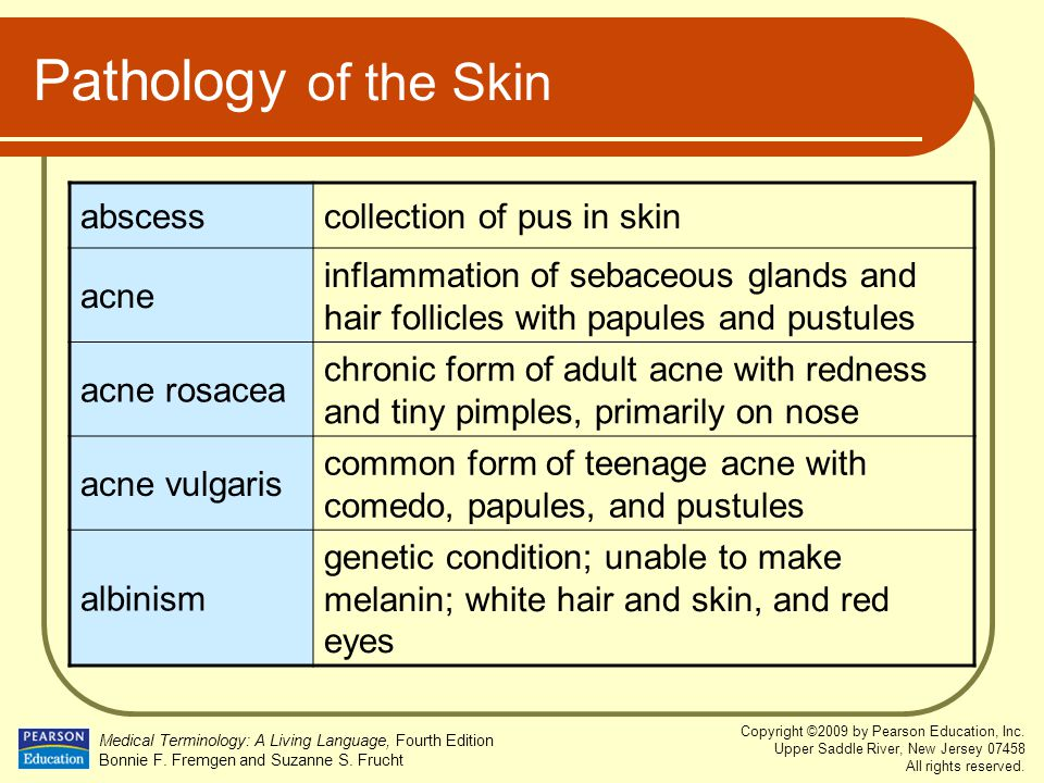 Pathology of the Skin abscess collection of pus in skin acne
