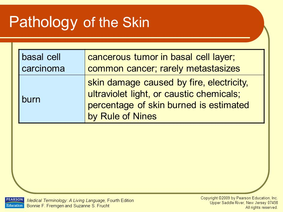 Pathology of the Skin basal cell carcinoma