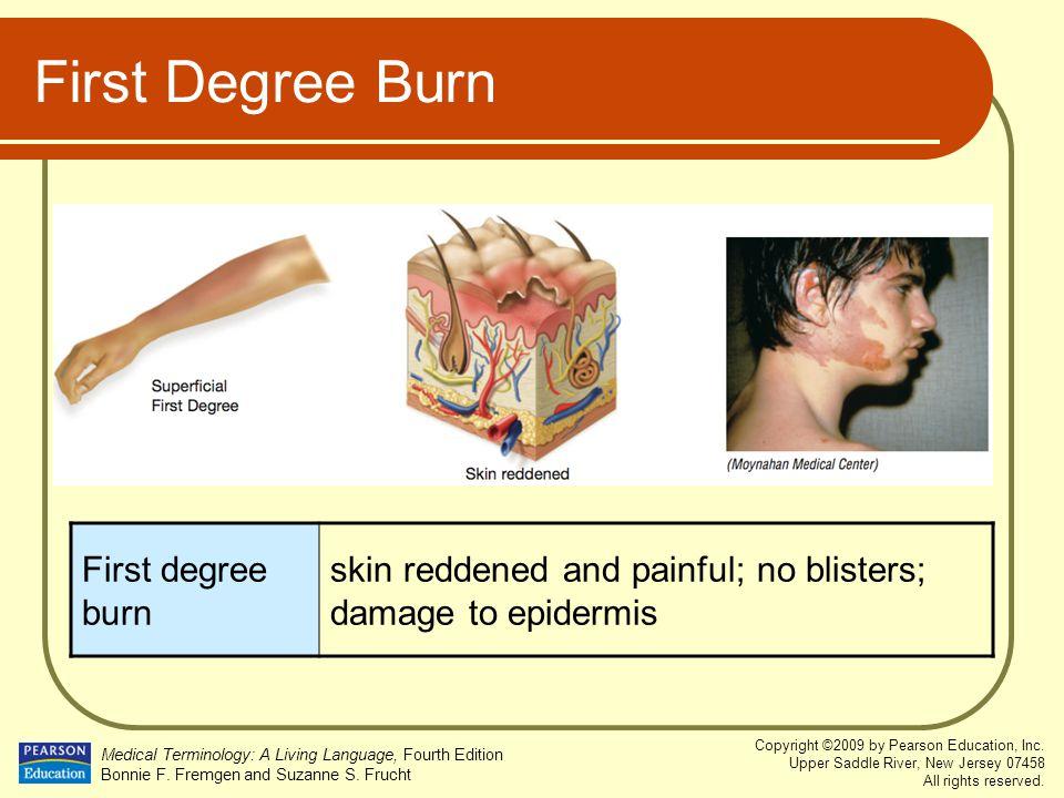First Degree Burn First degree burn