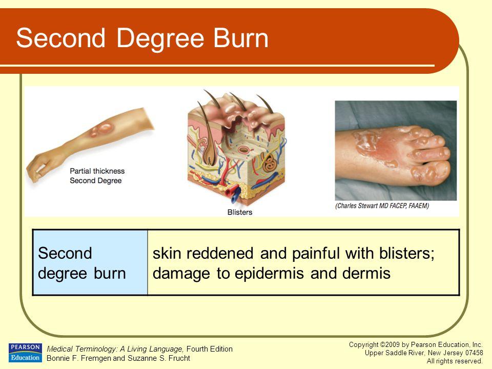 Second Degree Burn Second degree burn
