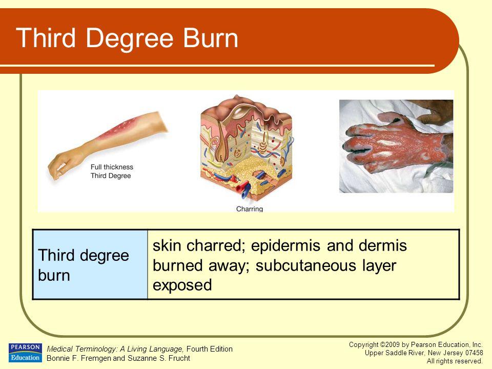 Third Degree Burn Third degree burn.