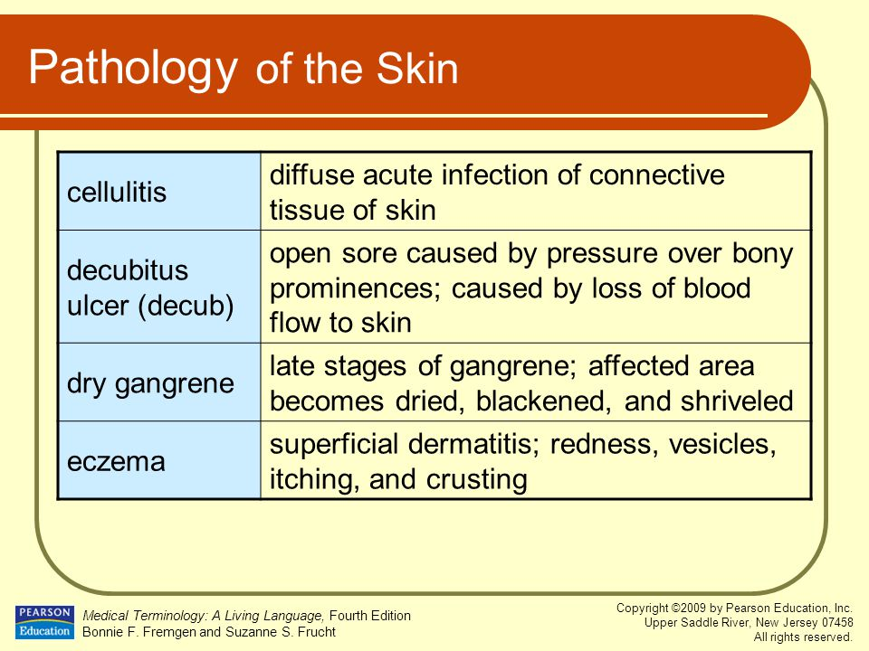 Pathology of the Skin cellulitis. diffuse acute infection of connective tissue of skin. decubitus ulcer (decub)