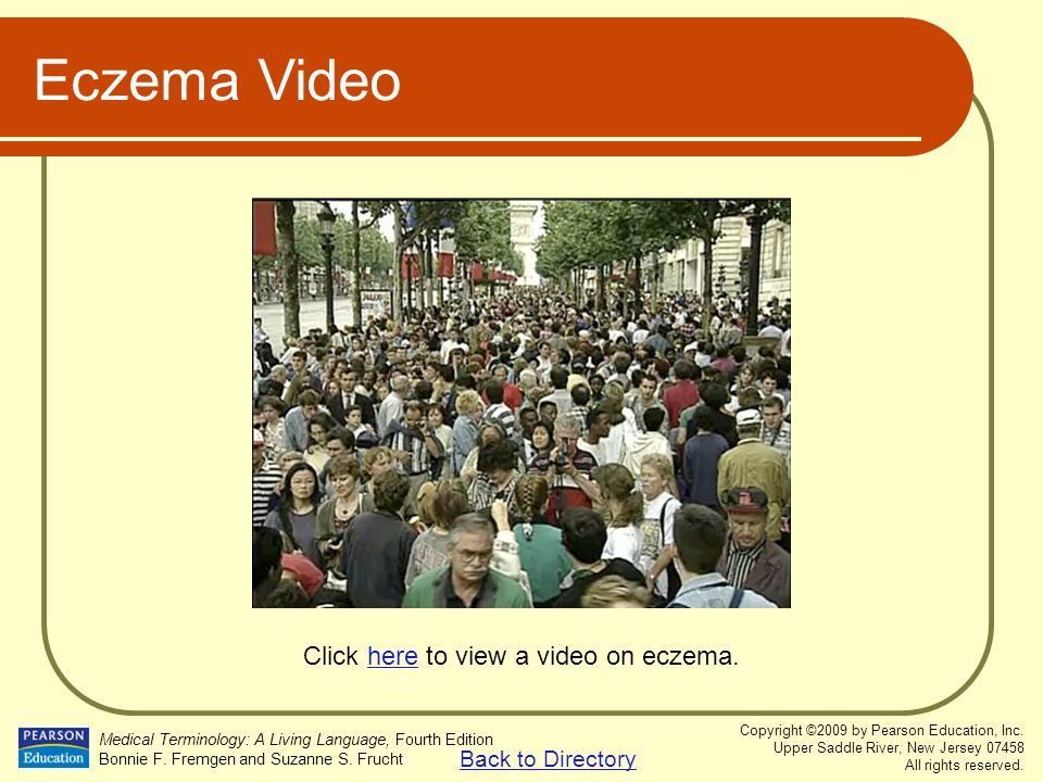 Click here to view a video on eczema.