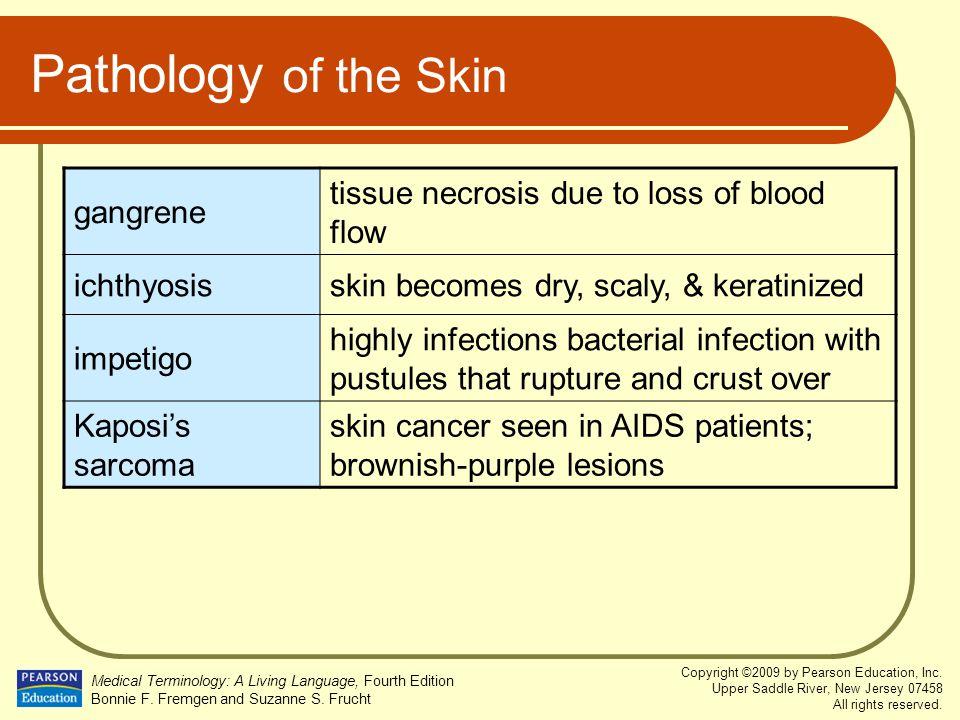 Pathology of the Skin gangrene