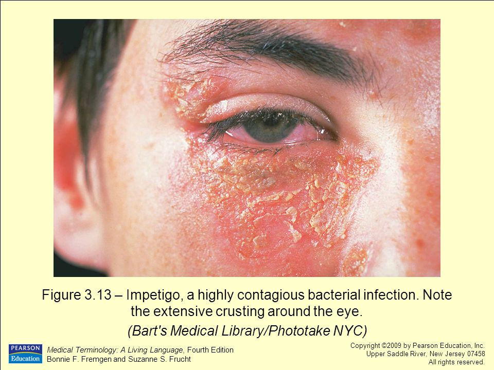 (Bart s Medical Library/Phototake NYC)