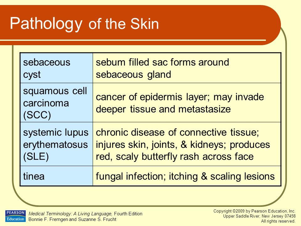 Pathology of the Skin sebaceous cyst