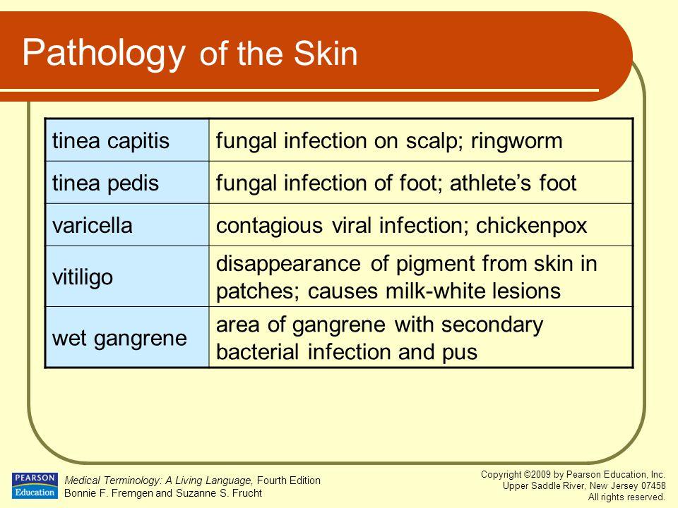 Pathology of the Skin tinea capitis