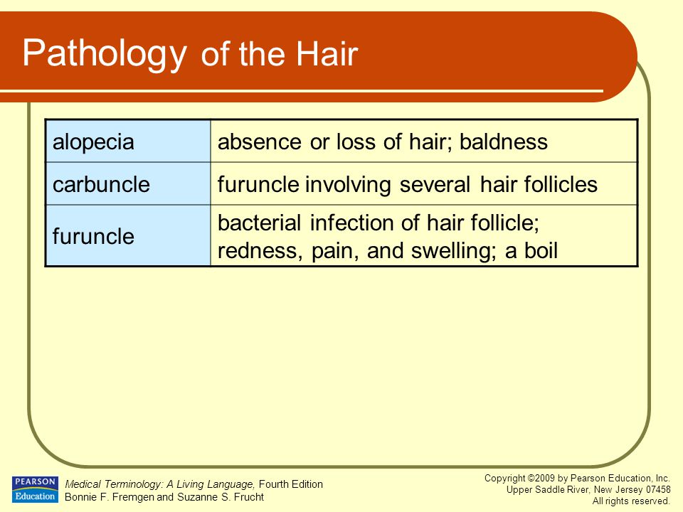 Pathology of the Hair alopecia absence or loss of hair; baldness