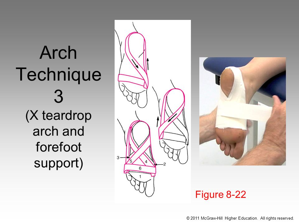 Arch Technique 3 (X teardrop arch and forefoot support)