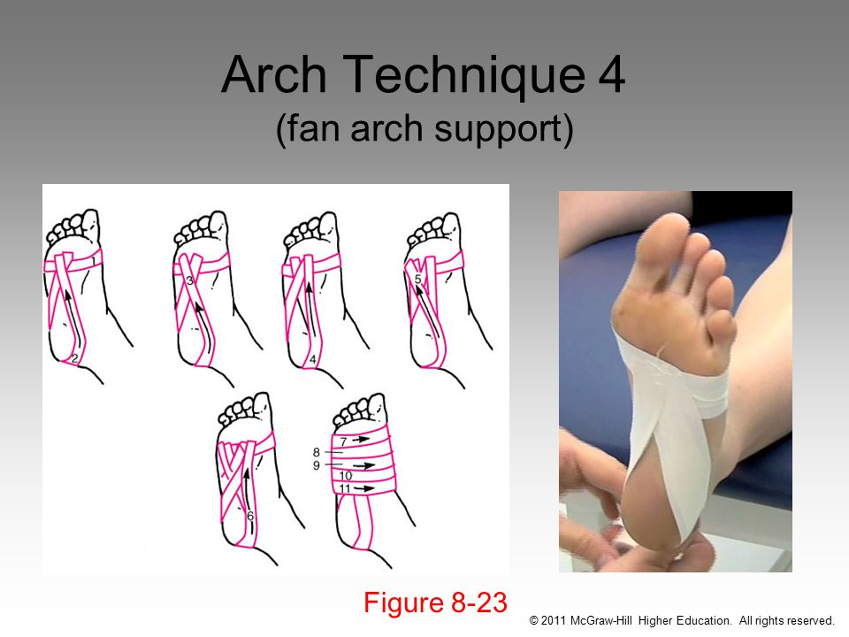 Arch Technique 4 (fan arch support)