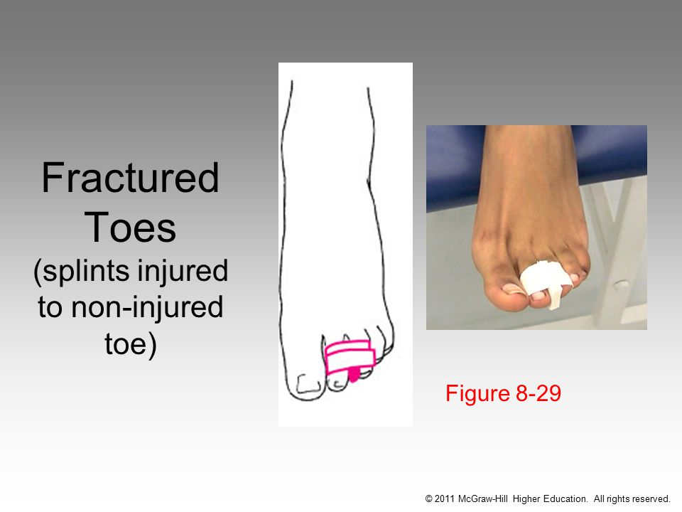 Fractured Toes (splints injured to non-injured toe)