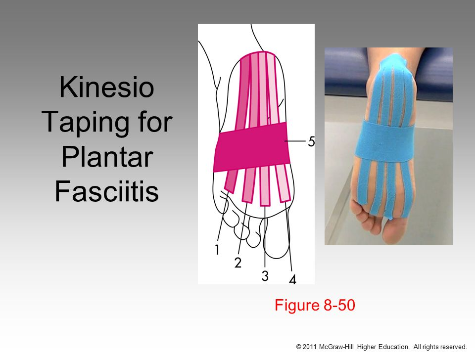 Kinesio Taping for Plantar Fasciitis
