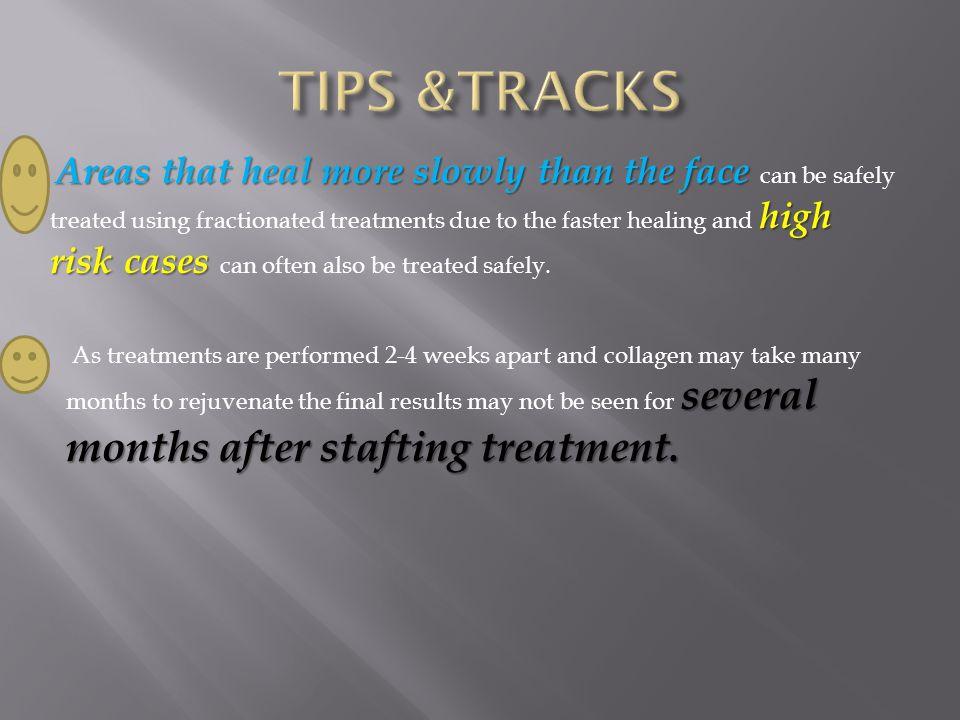 TIPS &TRACKS