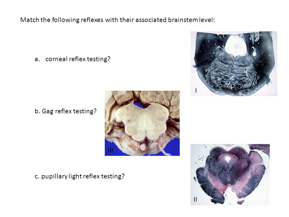 Match the following reflexes with their associated brainstem level: