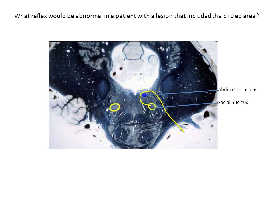 What reflex would be abnormal in a patient with a lesion that included the circled area