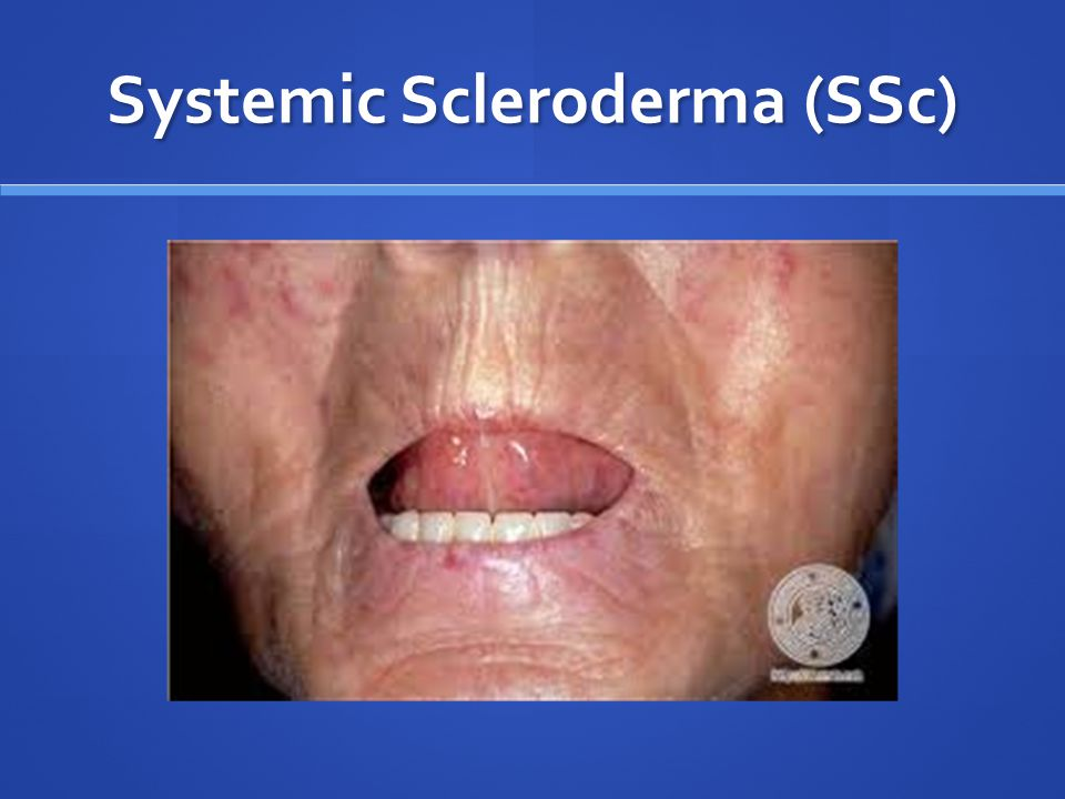 topical steroids systemic side effects